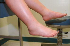 Почему нога опухла и болит