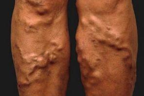 Тромбоз: причины, симптомы, лечение