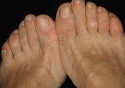 Шишка на среднем пальце ноги