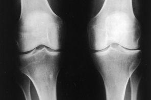 Артроз коленного сустава 2 степени