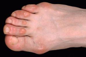 Почему на пальце ноги появился бугорок и болит