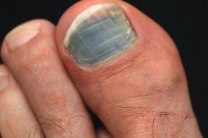 Как лечить чёрный ноготь на ноге