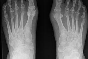 Лечение артроза стопы медикаментозно