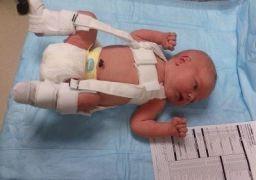 Недоразвитость тазобедренных суставов у новорожденных