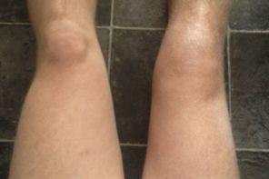 Атрофия мышц ног