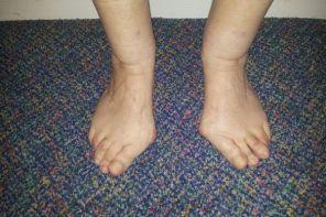 Симптомы и степени деформирующего артроза стопы