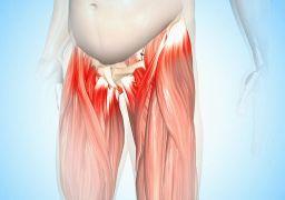 Тендиноз тазобедренного сустава