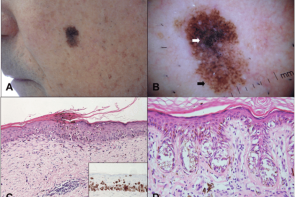 Лентигинозная меланоцитарная дисплазия