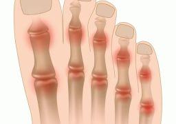 Почему болит ноготь на большом пальце ноги