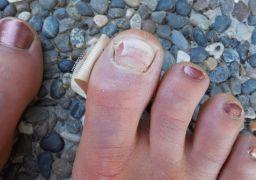 Отслоение ногтя на большом пальце ноги