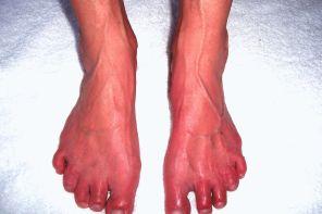 Как вылечить боль в стопе между пяткой и носком