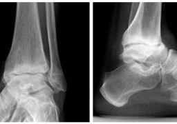 Артроз коленного сустава или гонартроз лечение 2 степени заболевания