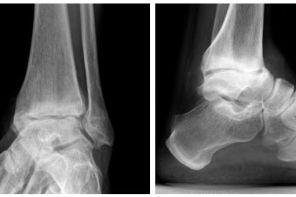 Острый артрит голеностопного сустава