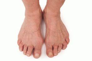Лечение ревматоидного артрита в домашних условиях