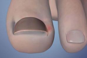 Почему опух палец на ноге возле ногтя
