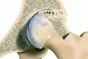 Лечение тазобедренного сустава при деформирующем артрозе