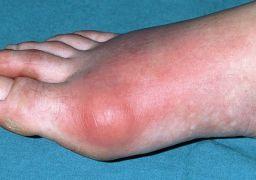Почему опух сустав большого пальца ноги