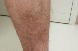 Лимфодема ног