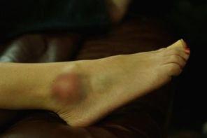 Что делать, если шишка на ноге после удара не проходит