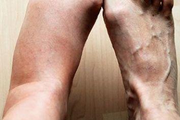 Опухоль на ноге