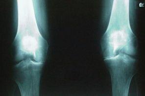 Деформирующий остеоартроз коленного сустава
