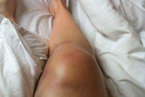 Как снять отёк ноги после травмы