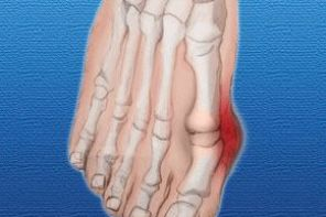Как лечить косточку на ноге
