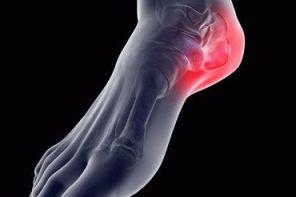 Симптомы артроза пятки