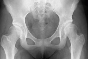 Дисплазия тазобедренного сустава у взрослых