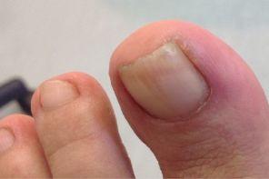 Воспаление ногтевого валика на ноге