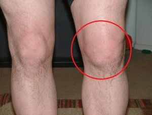 Воспалённое колено