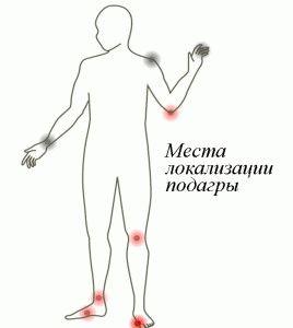 Возможные места локализации болезни