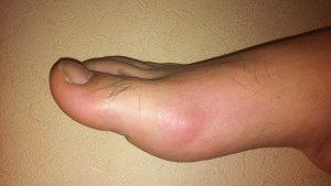 Появляется воспаление на ноге