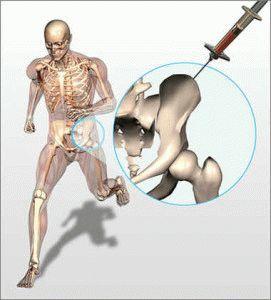 Инъекции в больной сустав