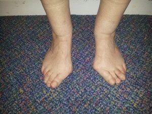 Деформация костей стопы