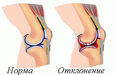Лечение деформация сустава суставная гимнастика дикуля скачать