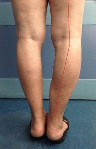 Изгиб ноги из-за артроза