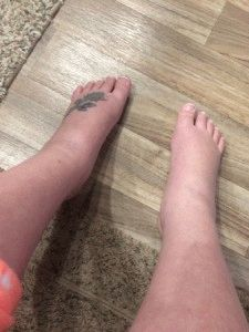 Сравнение отёчности обеих ног