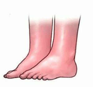 Опухание и покраснение ног
