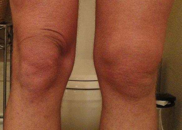 Отек чашечки коленного сустава торсунов сустав коленный