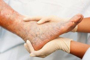 Болезненная нога