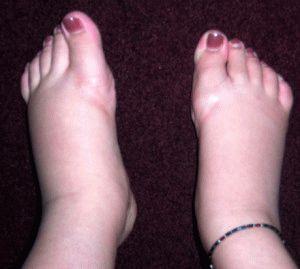 Явные припухлости ног