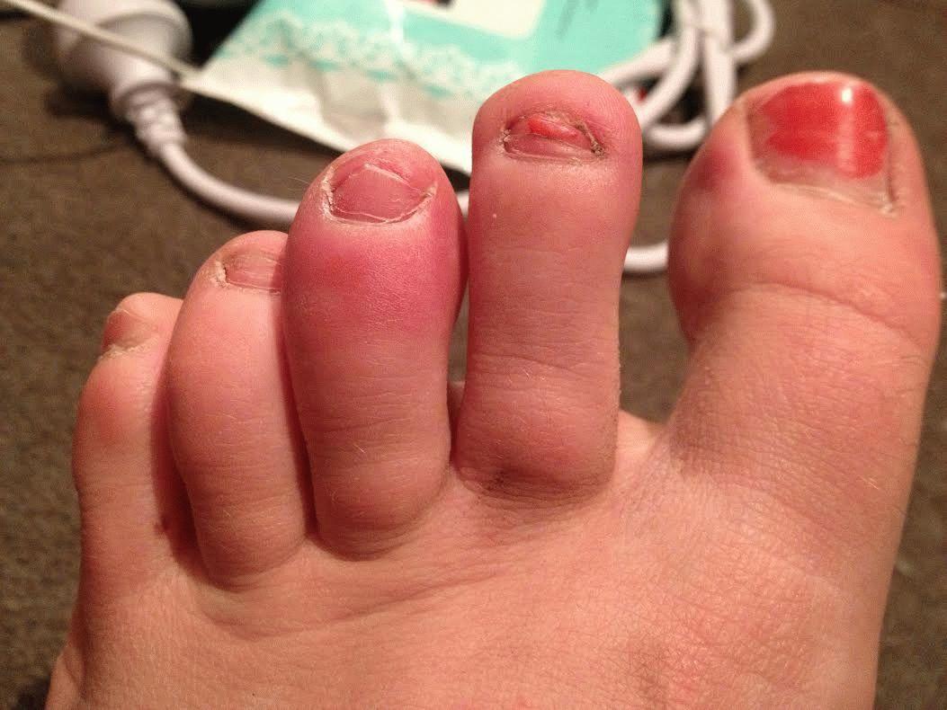 Отеки суставов пальцев ног упал теперь болит колено