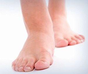 Отёкшие ноги