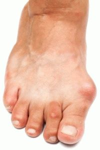 Почему появляются отеки в области косточки на ногах