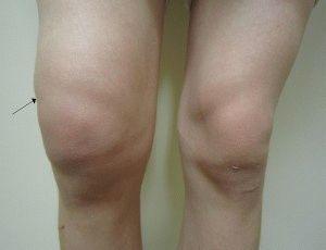 Отёкшее колено