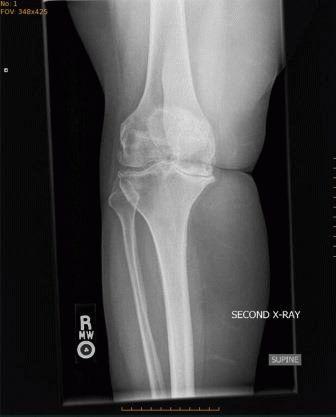 Артроз коленного сустава 3 степени лечение без операции симптомы