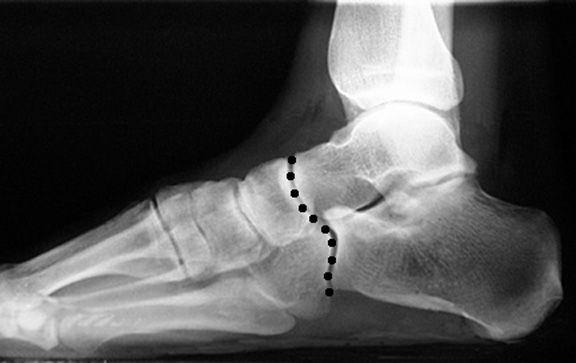 Что такое артроз таранно-ладьевидных суставов ударно волновое лечение суставов