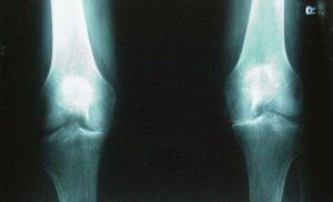 Снимок коленей пациента