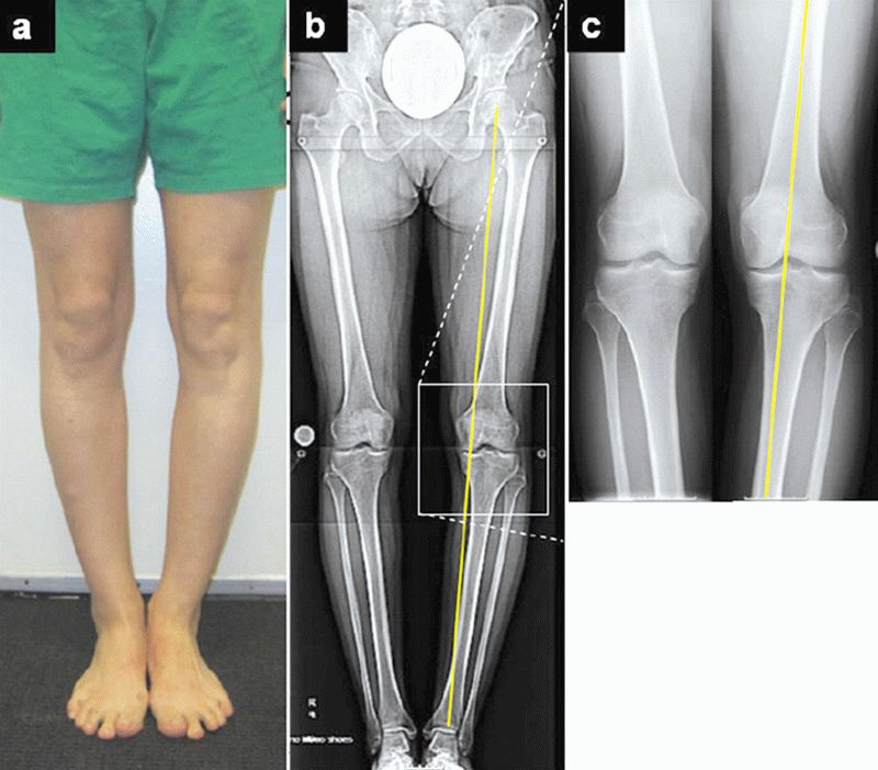 Артроз 1 степени коленного сустава лечение и симптомы